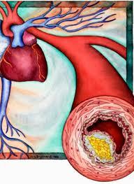 aterozkleroz